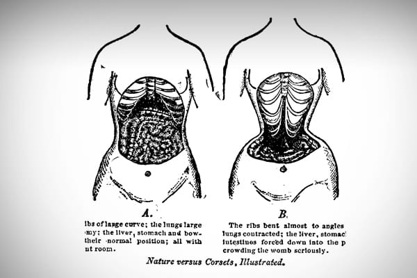 "Before women wore girdles, and long before Spanx was created, corsets were a requirement for women with strong moral values.  The term ""loose woman"" was coined to describe a woman who was seen in public without her corset. Unfortunately, in addition to fortifying a woman's virtue, they also caused internal damage to the body."