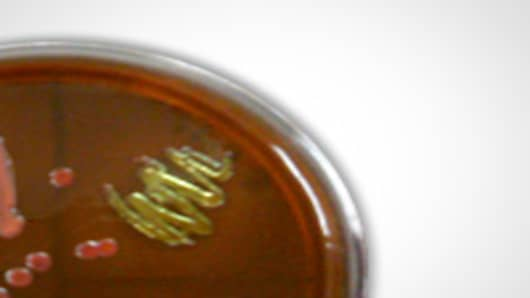E. coli cultured on an EMB plate