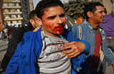 A wounded Egyptian man is brought away from front lines during a clash between pro- and anti-Mubarak protesters February 2, 2011.