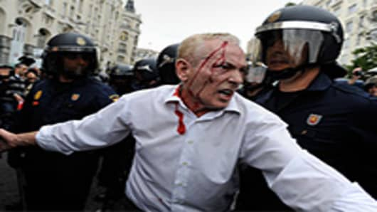 A man with a head wound tries to calm the crowd of protestors during a demonstration surrounding the Spanish parliament to protest against spending cuts and the government of Mariano Rajoy on September 25, 2012 in Madrid, Spain.