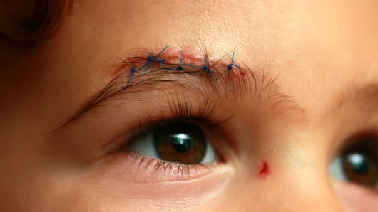 Ben Bellar, 2, whose six stitches cost more than $2,000, in East Lansing, Mich., Oct. 28, 2013.