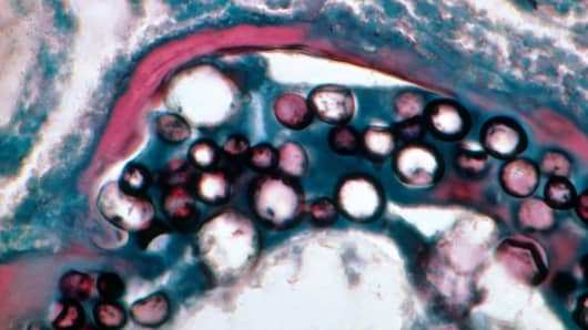 Light micrograph of lung tissue infected with the soil fungus Coccidioides immitis. The disease, coccidiomyocosis, is known as valley fever.