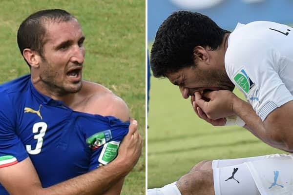 This combo of 2 photos shows Italy's defender Giorgio Chiellini (L) showing an apparent bitemark and Uruguay forward Luis Suarez (R) holding his teeth after the incident during the Group D football match between Italy and Uruguay at the Dunas Arena in Natal during the 2014 FIFA World Cup on June 24, 2014.