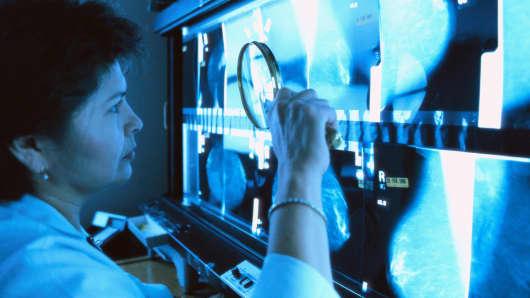 mammogram doctor