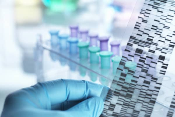 DNA Sequencing film strip.