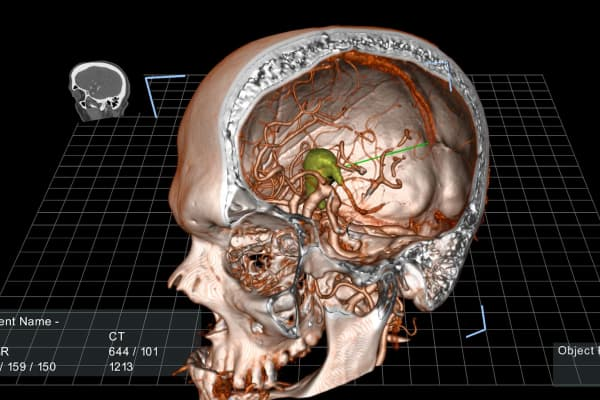 With True 3D, surgeons can practice removing a tumor from a brain.