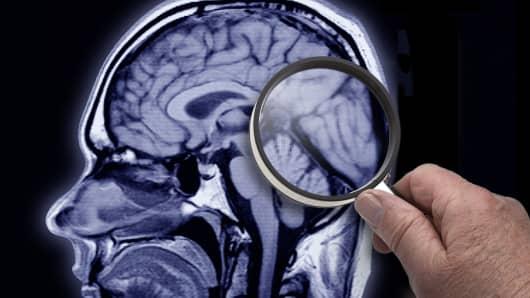 An MRI scan of an Alzheimer's patient's brain