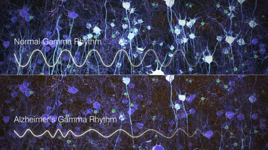 Scans show normal gamma rhythm versus that in a brain affected by Alzheimer's.