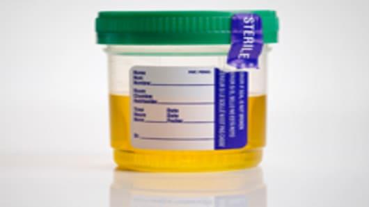 urine_specimen_200.jpg