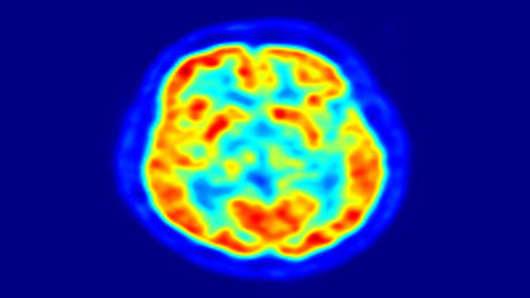 alzheimers_brain_scan_200.jpg