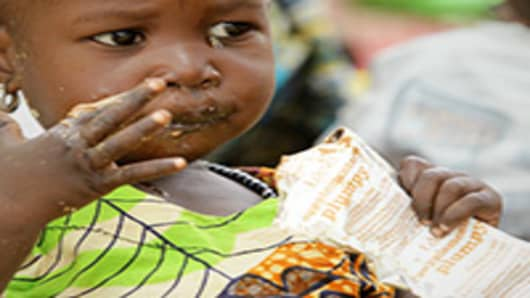 A child at a clinic eats her Plumpy Nut, a peanut based nutritional supplement distributed to malnourished children.