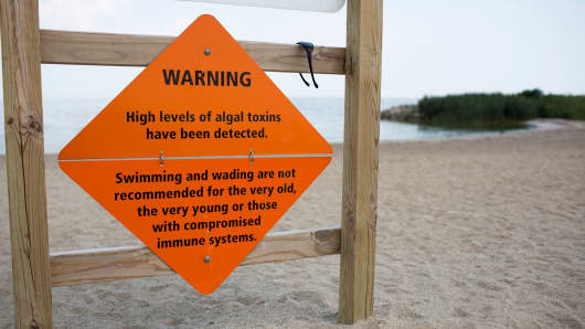 A sign warns of algae infestation at Maumee Bay State Park, August 4, 2014 in Oregon, Ohio.