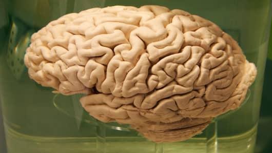 A human brain preserved in formeldahyde.