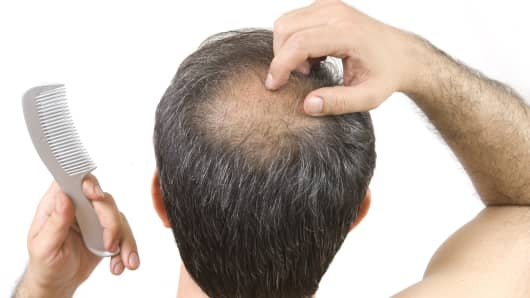 Balding bald hair loss
