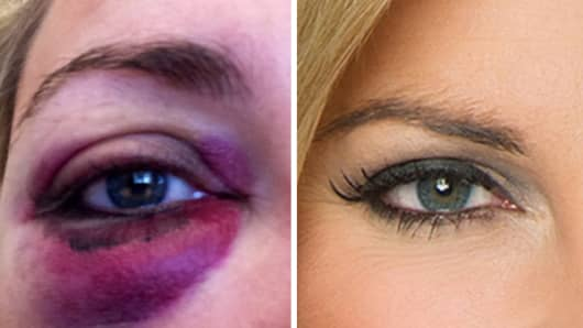 Mandy Drury's black eye.