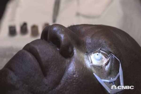 Watch a surgeon tattoo this man's eyeball