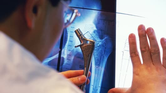 Doctor examining artifical hip joint and X-ray