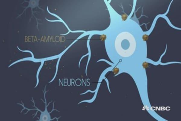 CNBC Explains: New Alzheimer's drugs