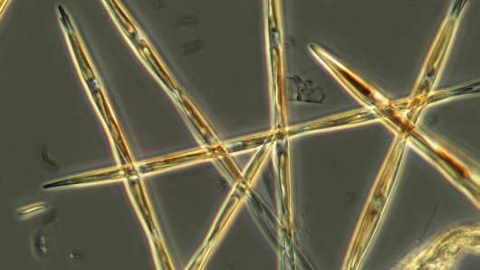 In this undated handout microscopy photo provided by NOAA Fisheries, the algae pseudo-nitzchia, which produces the toxic domoic acid, is seen from an algae bloom sample collected during its survey this summer on the West Coast.