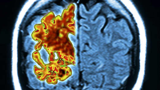 Alzheimer's brain. Composite image of a computer graphic of a vertical (coronal) slice through the brain of an Alzheimer's patient (orange) overlaid on a magnetic resonance imaging (MRI) scan of a normal brain (blue).