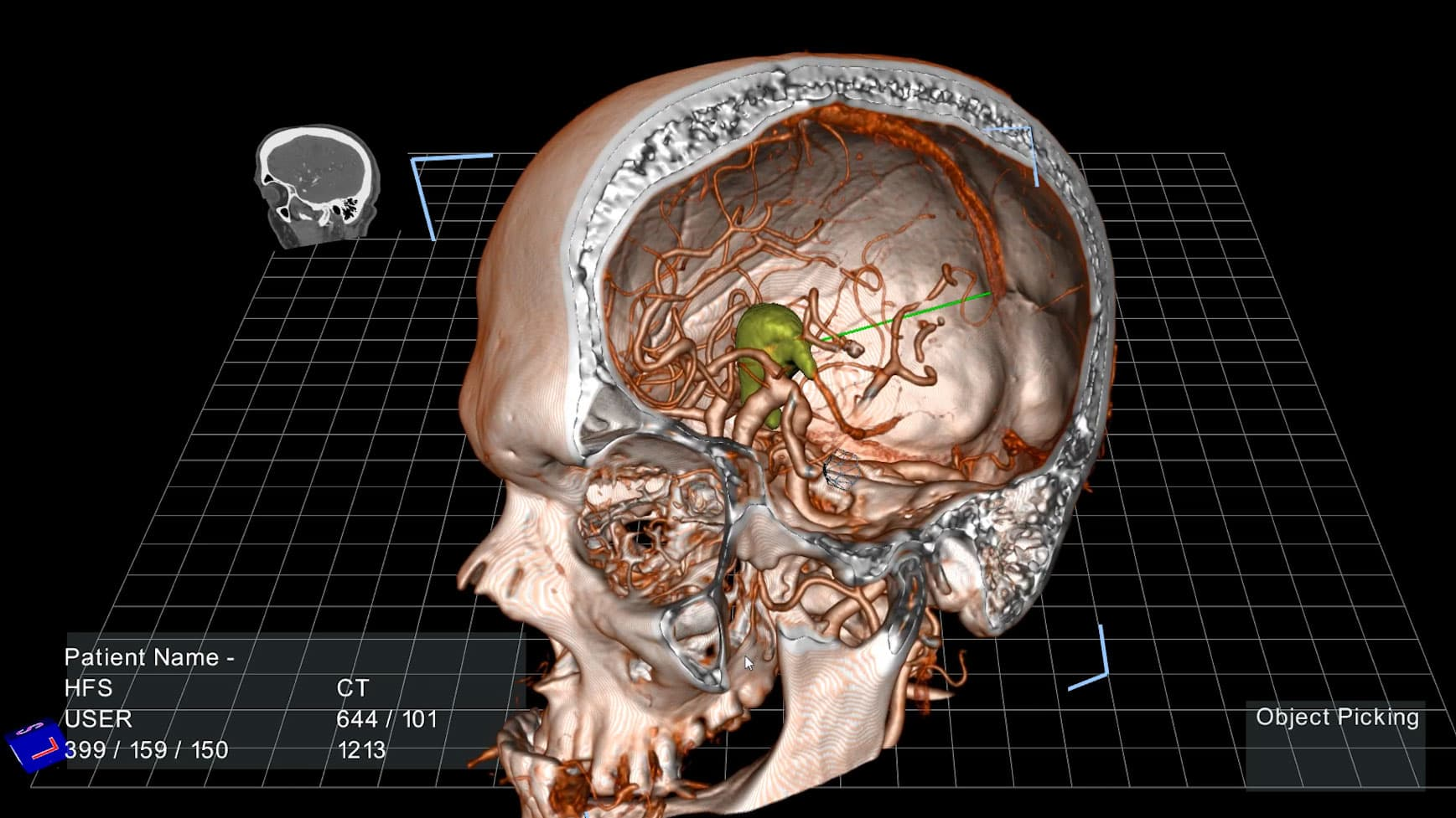 Doctors can now get a 3-D holographic look at your insides