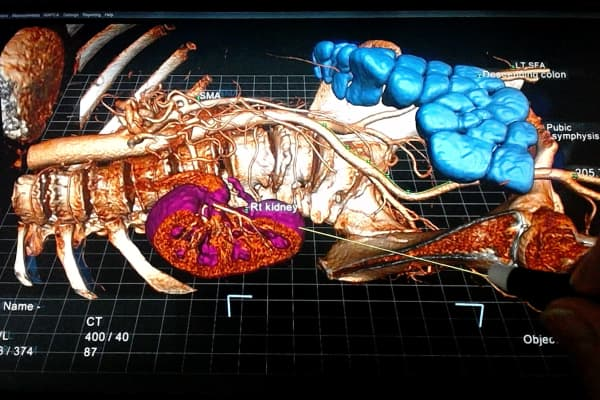 Using a stylus, physicians can manipulate organs and tissue.