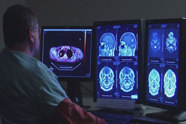 Promising results for stroke survivors after 'unprecedented' trial