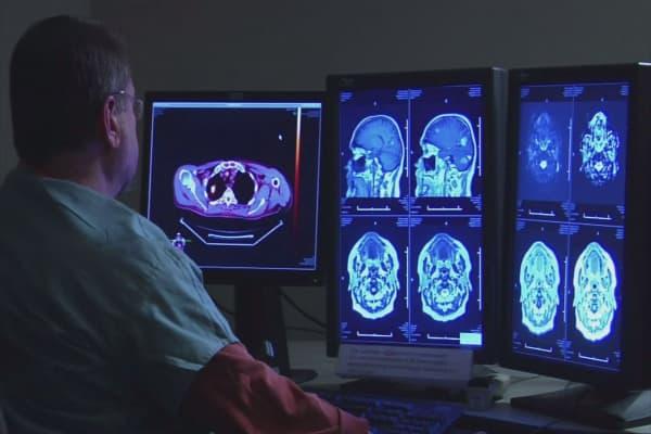 Promising results for stroke survivors after 'unprecedented' trial