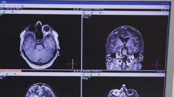 Certain jobs may help prevent Alzheimer's disease
