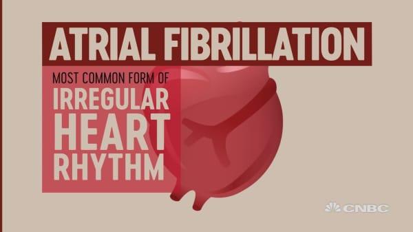 What happens during atrial fibrillation