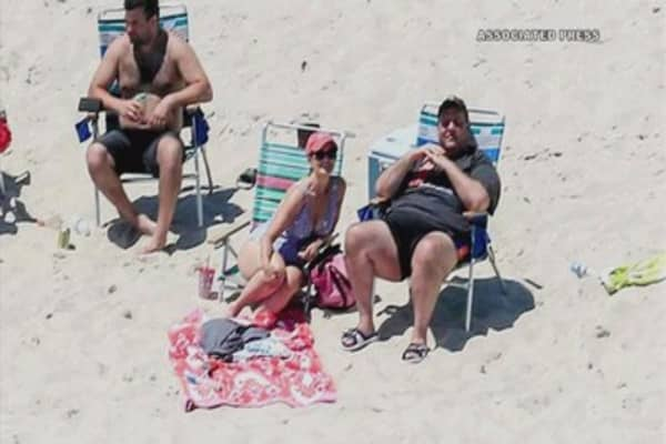 NJ Governor Chris Christie is blistered over his day at the beach