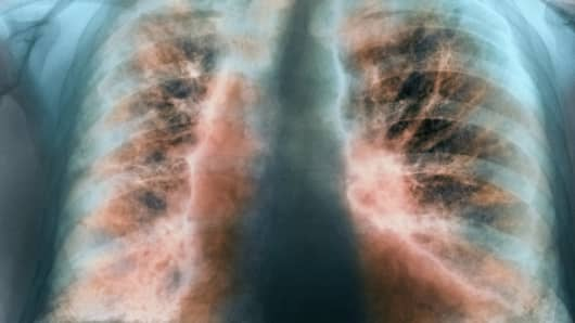 An x-ray of a man with idiopathic pulmonary fibrosis.