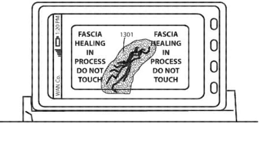 An image from the Motorola patent filing shows the self-healing screen idea.
