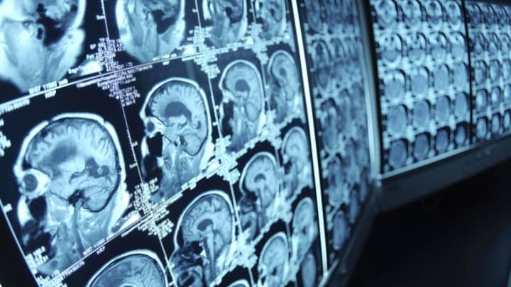 Biotech Neurology