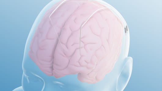 Illustration of leads placed in the brain from the deep brain stimulation procedure.