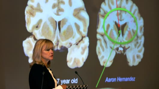 Dr. Ann McKee announces her findings on her examination of the brain of former New England Patriots player and convicted killer Aaron Hernandez during a press conference at Boston University on Nov. 9, 2017.