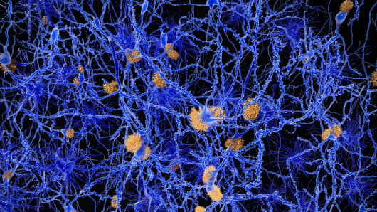 Amyloid plaques accumulate outside neurons. Amyloid plaques are characteristic features of Alzheimer's disease. They lead to a degeneration of the affected neurons.