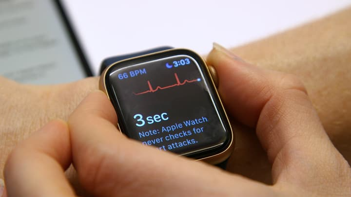 How to use the Apple Watch's new ECG feature