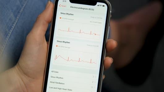 Apple Watch ECG sensor: Review