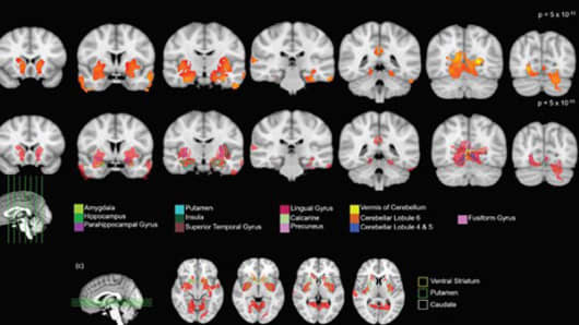 Various figures show gray matter volume differences after cannabis use in adolescents.